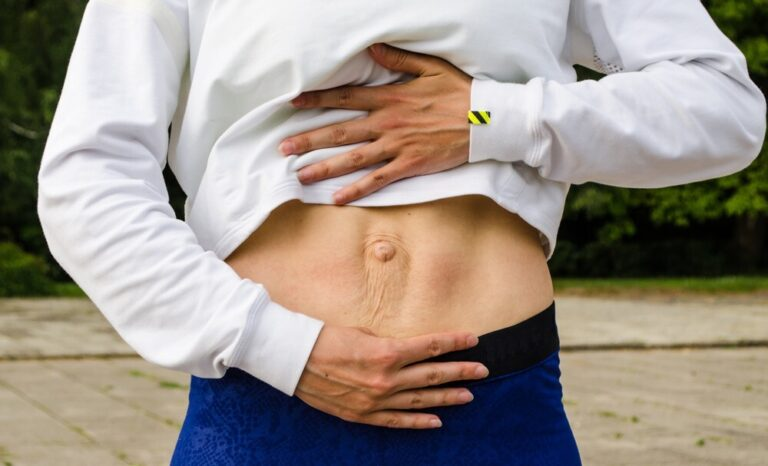 Can I Jump Rope With Diastasis Recti?